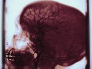 Cases of Idiopathic Intracranial HTN on the Rise in Wales