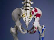 RSNA: Sleeve Gastrectomy in Teens May Harm Bone Health